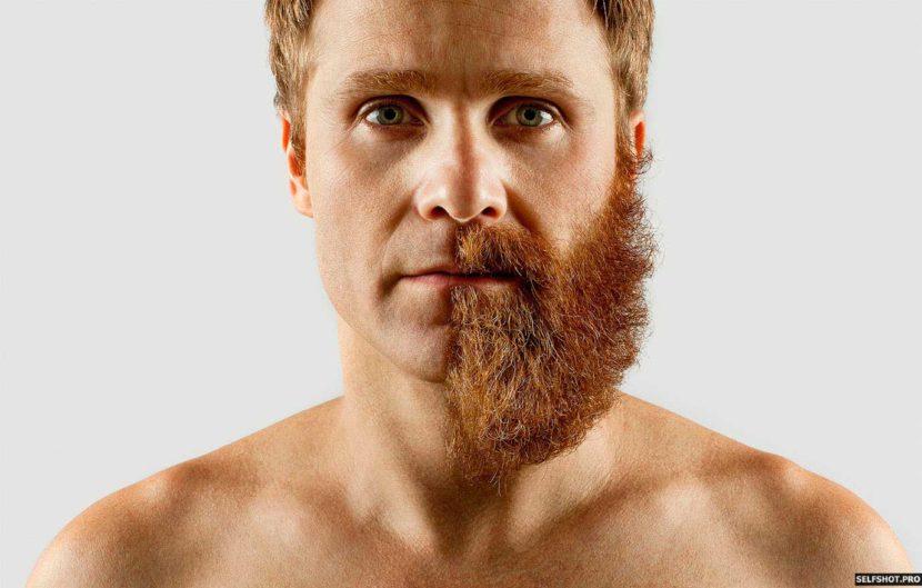 Что делать если не растет борода — несколько советов