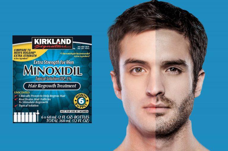 Средство от облысения Minoxidil 2 мг/мл — густая шевелюра за короткий срок