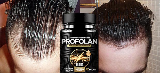 Profolan — мощный активатор для роста волос: инструкция, особенности, отзывы
